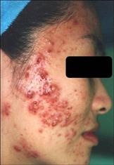 schoonheidssalon-soraya-lhe-acne-gezicht-meisje-voor